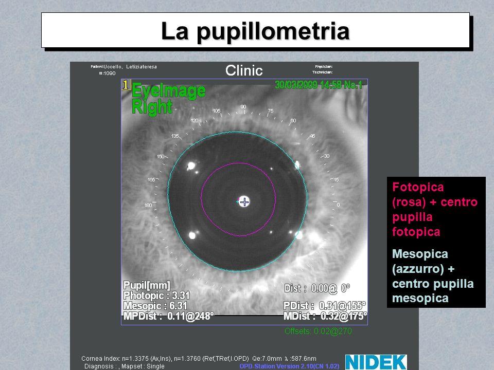 Fotopica (rosa) + centro pupilla fotopica Mesopica (azzurro) + centro pupilla mesopica La pupillometria