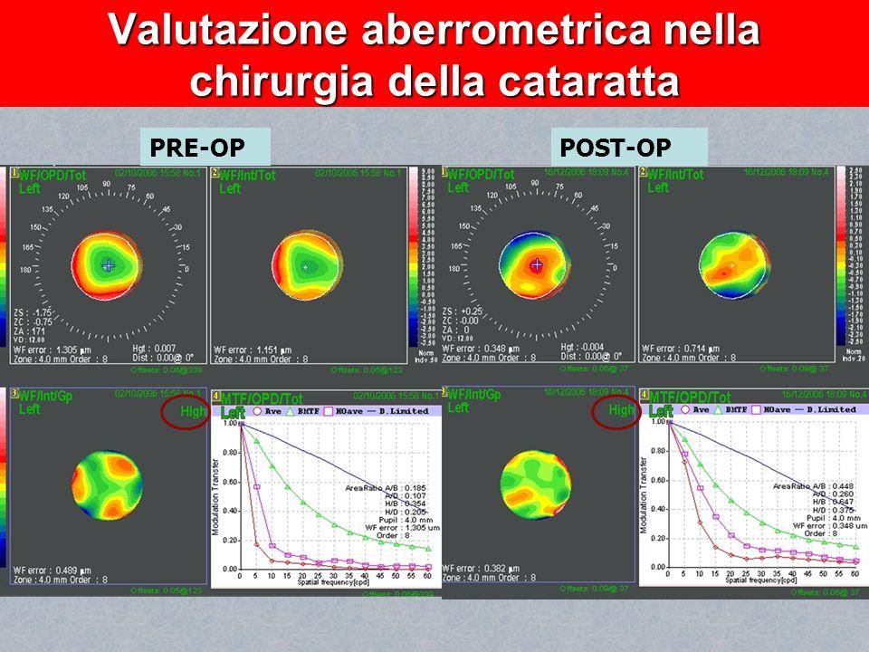 Valutazione aberrometrica nella chirurgia della cataratta PRE-OPPOST-OP