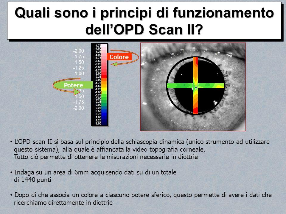 LOPD scan II si basa sul principio della schiascopia dinamica (unico strumento ad utilizzare questo sistema), alla quale è affiancata la video topogra