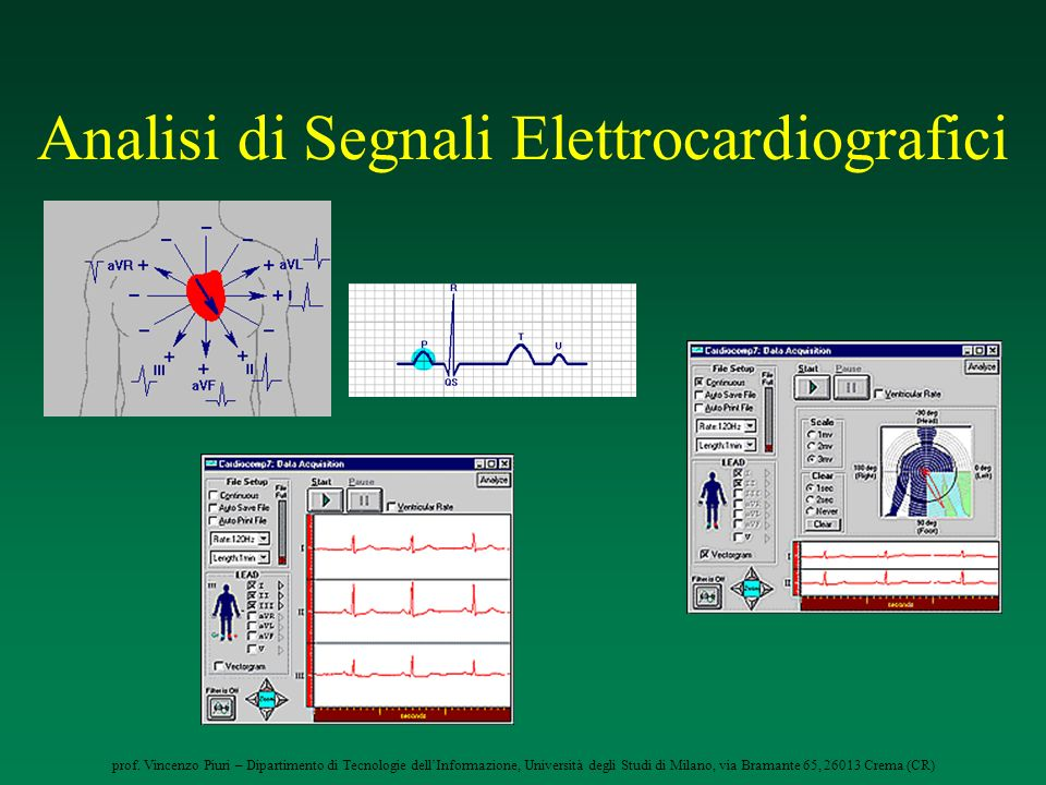 prof. Vincenzo Piuri – Dipartimento di Tecnologie dellInformazione, Università degli Studi di Milano, via Bramante 65, 26013 Crema (CR) Analisi di Seg
