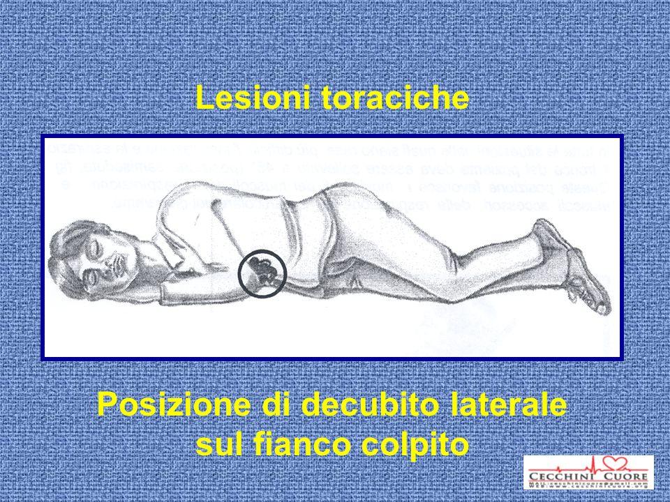 Lesioni toraciche Posizione di decubito laterale sul fianco colpito