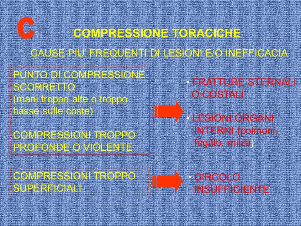 COMPRESSIONE TORACICHE CAUSE PIU FREQUENTI DI LESIONI E/O INEFFICACIA PUNTO DI COMPRESSIONE SCORRETTO (mani troppo alte o troppo basse sulle coste) CO