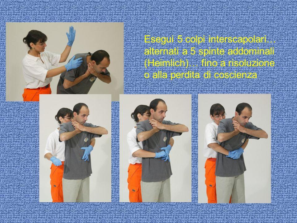 Esegui 5 colpi interscapolari… alternati a 5 spinte addominali (Heimlich)… fino a risoluzione o alla perdita di coscienza