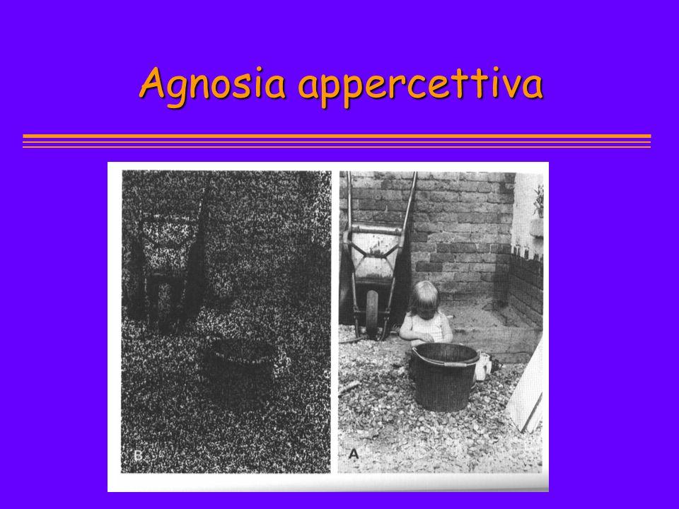 Agnosia appercettiva