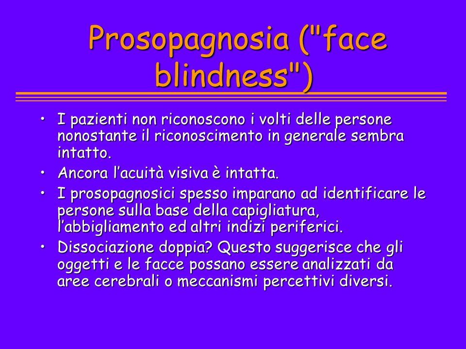 Prosopagnosia (