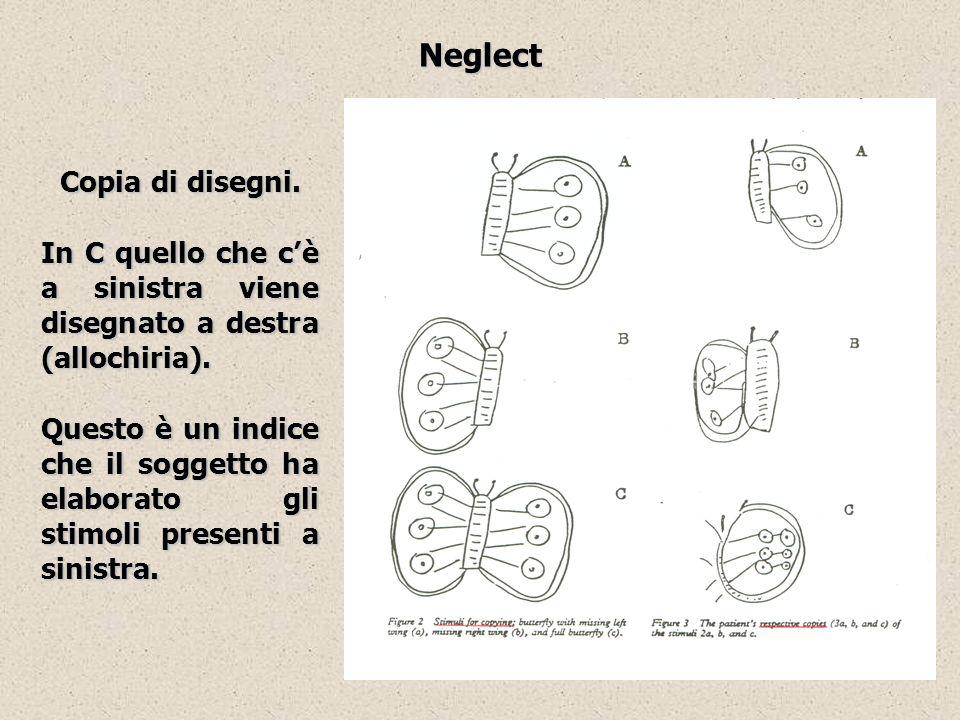 Neglect Copia di disegni. In C quello che cè a sinistra viene disegnato a destra (allochiria). Questo è un indice che il soggetto ha elaborato gli sti