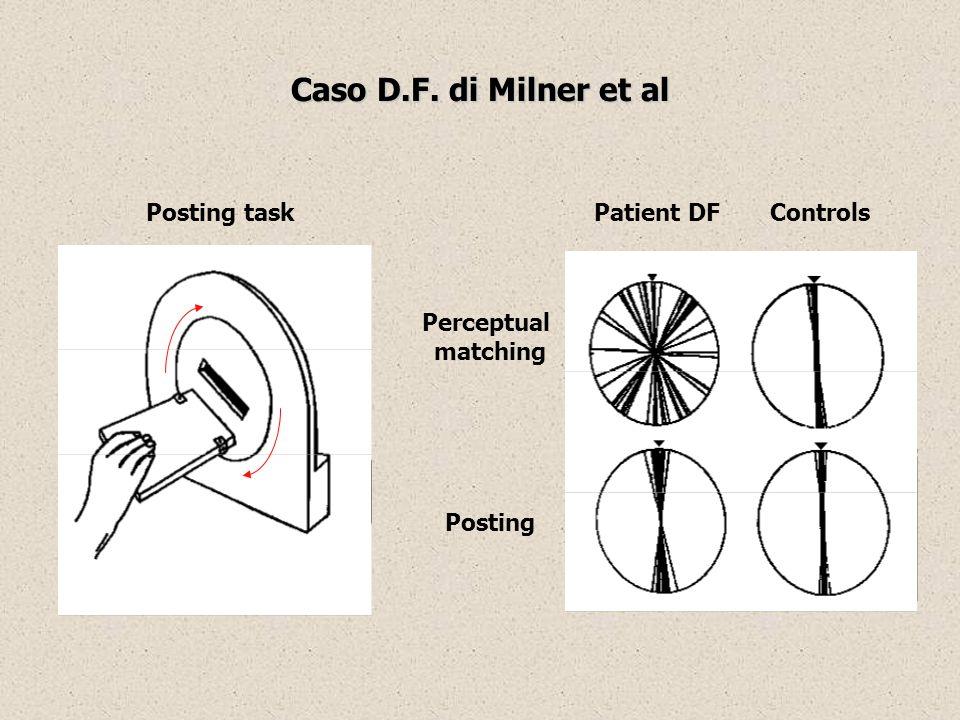 Patient DFControlsPosting task Perceptual matching Posting Caso D.F. di Milner et al