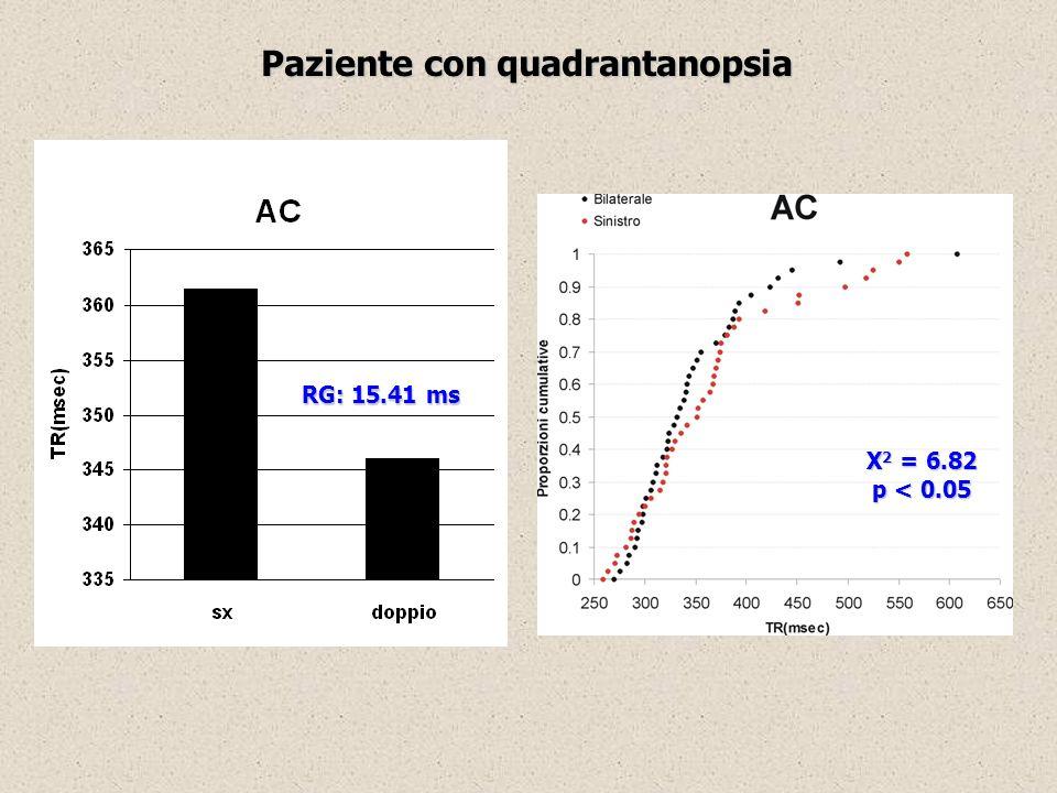 Paziente con quadrantanopsia RG: 15.41 ms X 2 = 6.82 p < 0.05