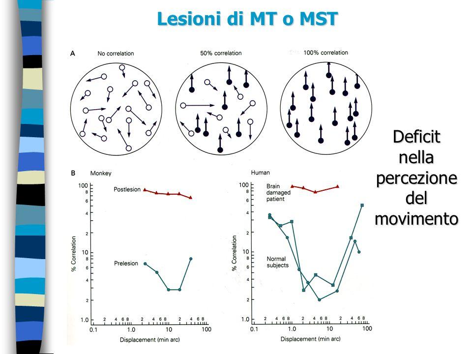 Lesioni di MT o MST Deficit nella percezione del movimento
