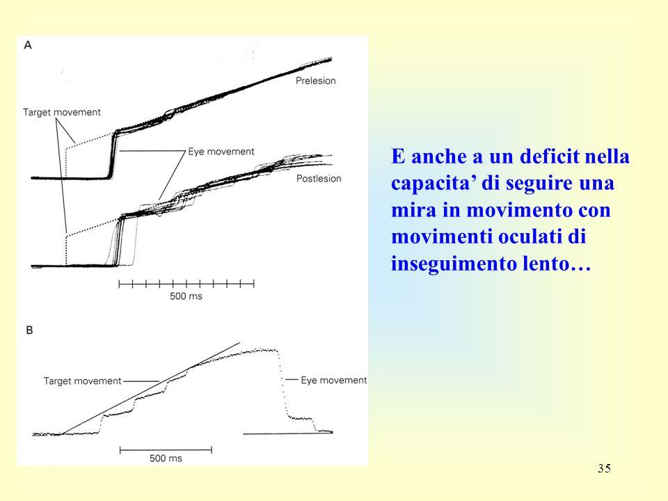 35 E anche a un deficit nella capacita di seguire una mira in movimento con movimenti oculati di inseguimento lento…