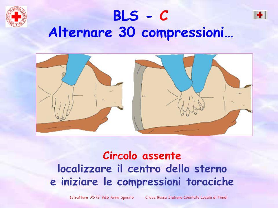 Circolo assente localizzare il centro dello sterno e iniziare le compressioni toraciche Istruttore PSTI VdS Anna Sposito Croce Rossa Italiana Comitato