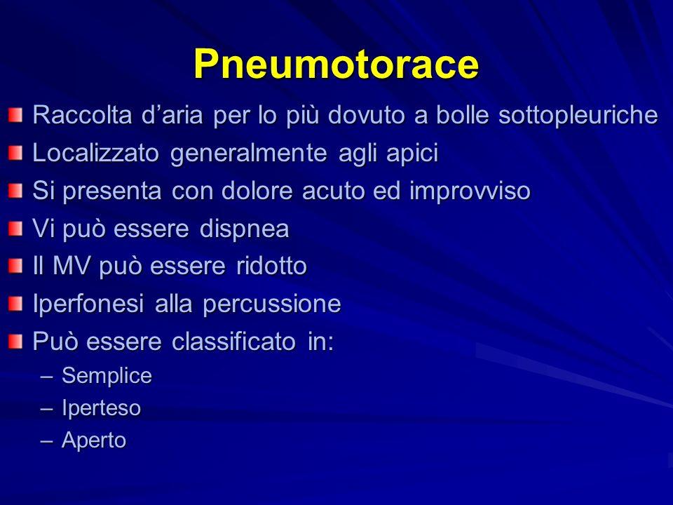 Pneumotorace Raccolta daria per lo più dovuto a bolle sottopleuriche Localizzato generalmente agli apici Si presenta con dolore acuto ed improvviso Vi
