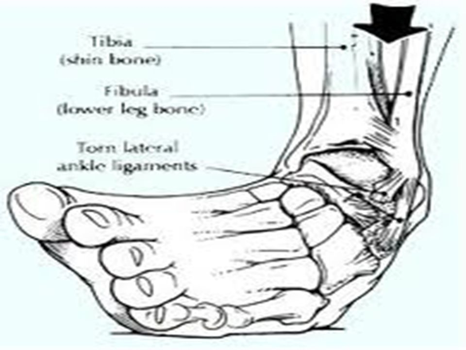 Lussazione Le ossa che entrano in un articolazione (spalla, ginocchio, caviglia) vengono distorte al punto da provocarne l uscita dalla stessa