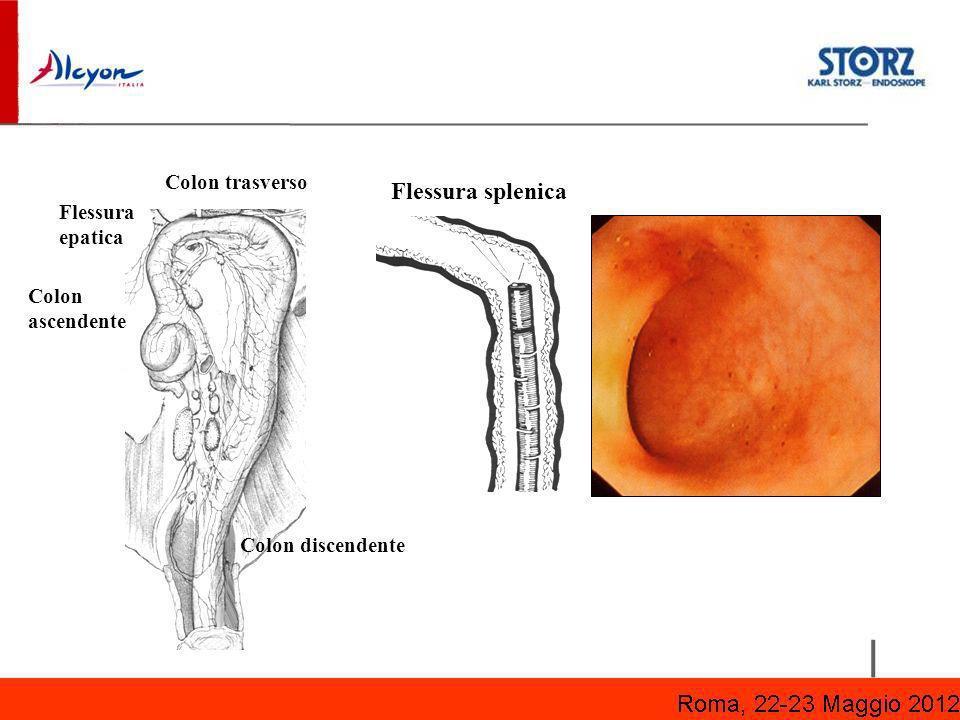 Colon trasverso Flessura splenica Colon discendente Flessura epatica Colon ascendente