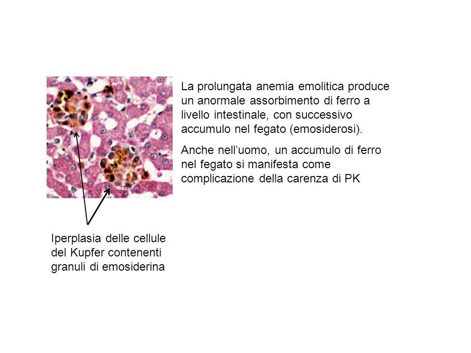 La prolungata anemia emolitica produce un anormale assorbimento di ferro a livello intestinale, con successivo accumulo nel fegato (emosiderosi). Anch