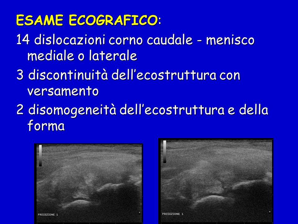 ESAME ECOGRAFICO: 14 dislocazioni corno caudale - menisco mediale o laterale 3 discontinuità dellecostruttura con versamento 2 disomogeneità dellecost