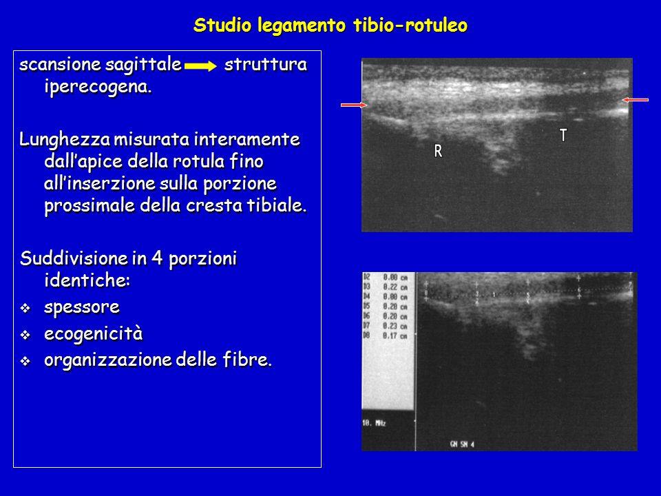 Studio legamento tibio-rotuleo scansione sagittale struttura iperecogena. Lunghezza misurata interamente dallapice della rotula fino allinserzione sul