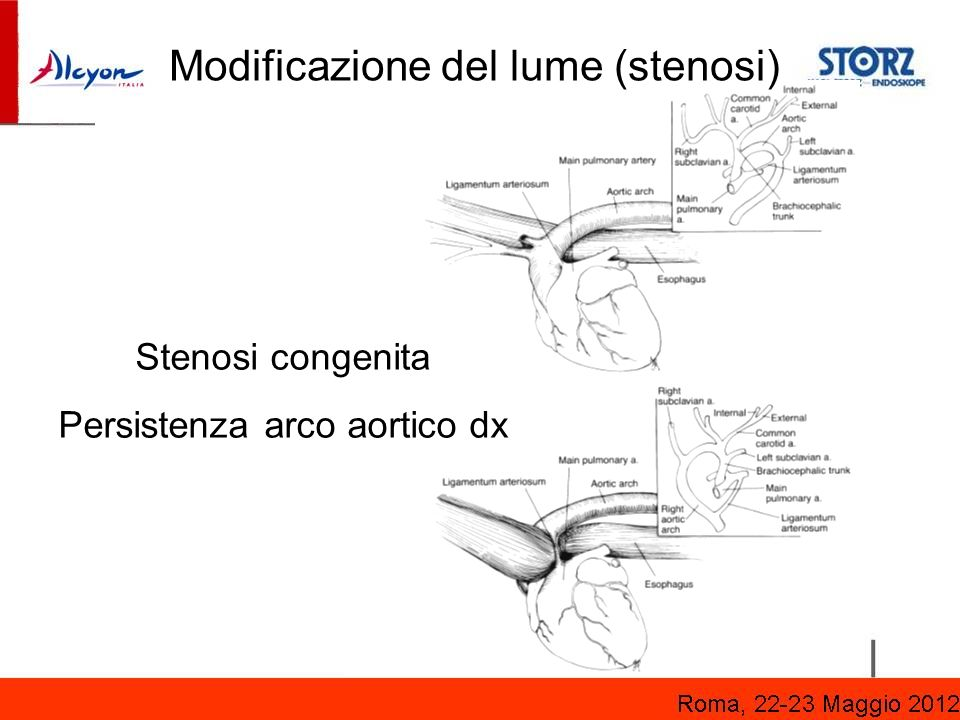 * Courtesy Prof. Kristic, University of Beograd Stenosi congenita