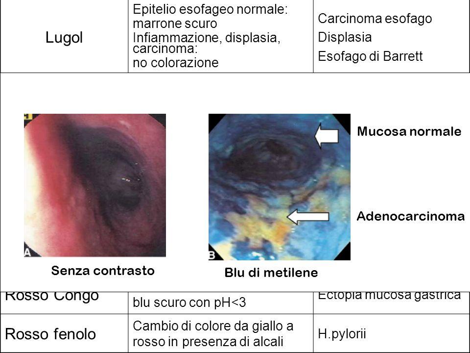 Lugol Epitelio esofageo normale: marrone scuro Infiammazione, displasia, carcinoma: no colorazione Carcinoma esofago Displasia Esofago di Barrett Blu