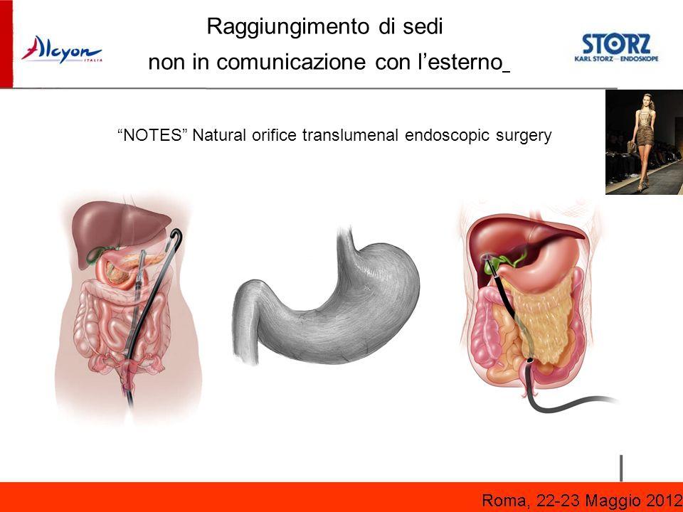 NOTES Natural orifice translumenal endoscopic surgery Raggiungimento di sedi non in comunicazione con lesterno