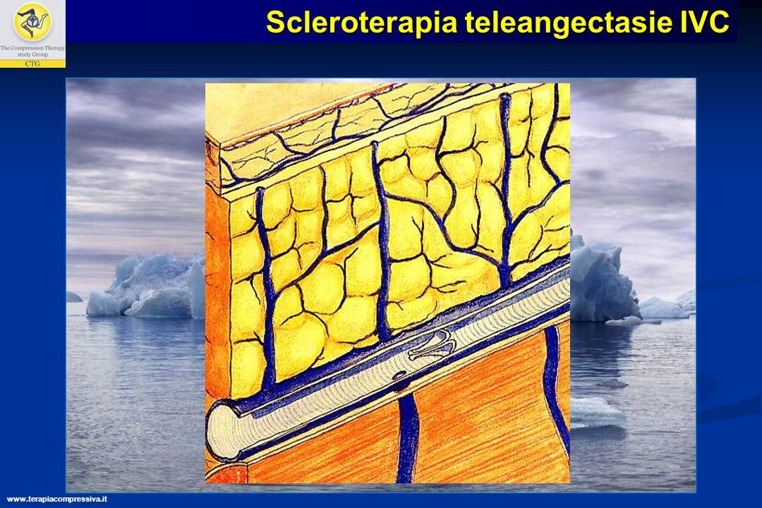 » La transilluminazione Scleroterapia teleangectasie IVC www.terapiacompressiva.it