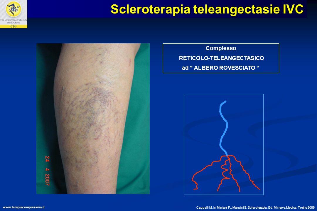 Complesso RETICOLO-TELEANGECTASICO ad ALBERO ROVESCIATO Cappelli M. in Mariani F., Mancini S. Scleroterapia. Ed. Minerva Medica, Torino 2006 Scleroter