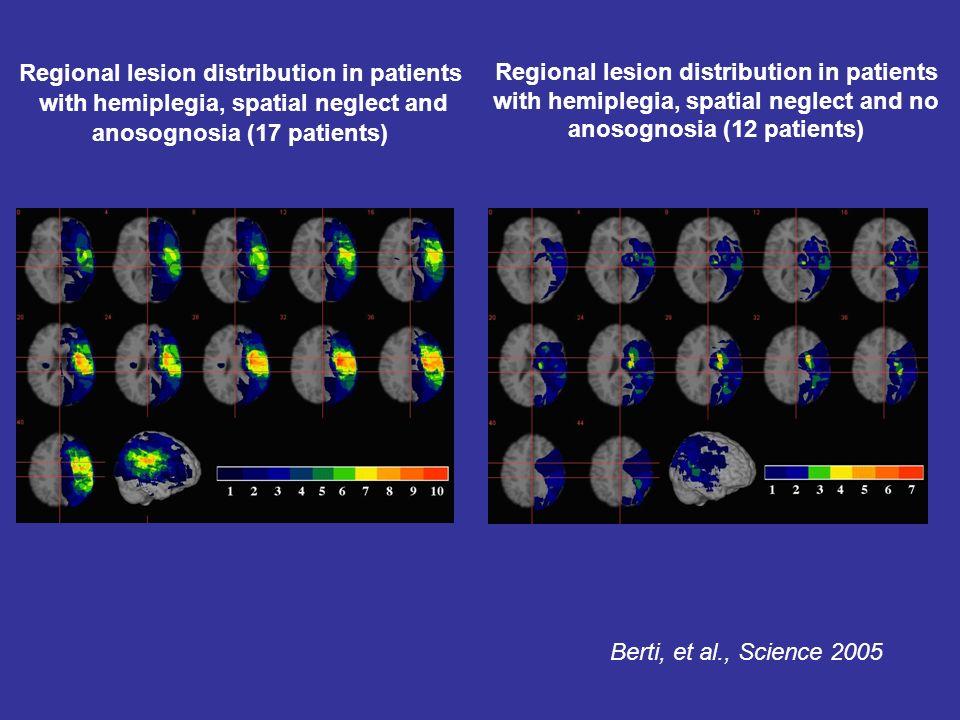 Regional lesion distribution in patients with hemiplegia, spatial neglect and no anosognosia (12 patients) Regional lesion distribution in patients with hemiplegia, spatial neglect and anosognosia (17 patients) Berti, et al., Science 2005