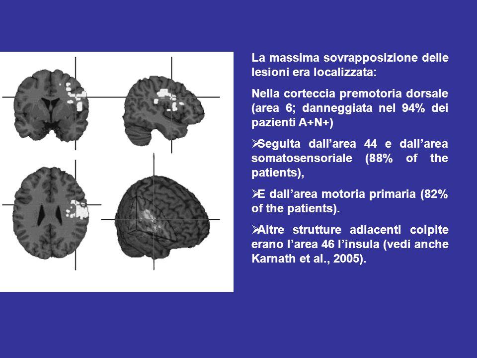 La massima sovrapposizione delle lesioni era localizzata: Nella corteccia premotoria dorsale (area 6; danneggiata nel 94% dei pazienti A+N+) Seguita dallarea 44 e dallarea somatosensoriale (88% of the patients), E dallarea motoria primaria (82% of the patients).