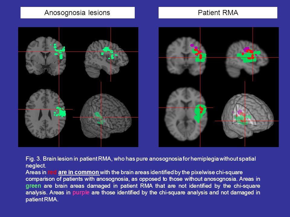 Anosognosia lesionsPatient RMA Fig. 3. Brain lesion in patient RMA, who has pure anosognosia for hemiplegia without spatial neglect. Areas in red are