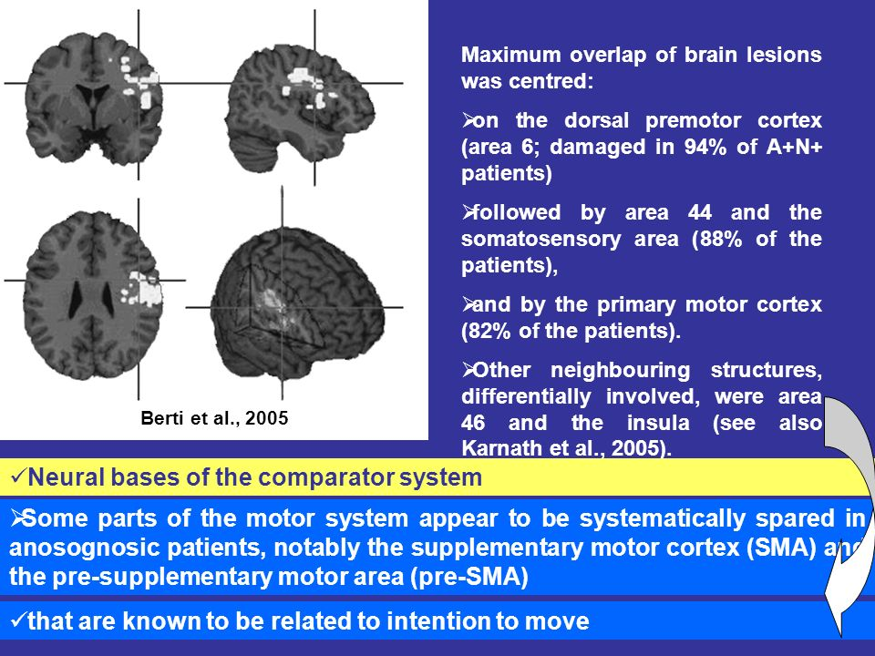 Some parts of the motor system appear to be systematically spared in anosognosic patients, notably the supplementary motor cortex (SMA) and the pre-supplementary motor area (pre-SMA) Maximum overlap of brain lesions was centred: on the dorsal premotor cortex (area 6; damaged in 94% of A+N+ patients) followed by area 44 and the somatosensory area (88% of the patients), and by the primary motor cortex (82% of the patients).