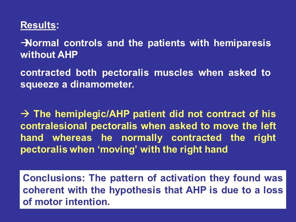 Anosognosia lesionsPatient RMA Fig.3.