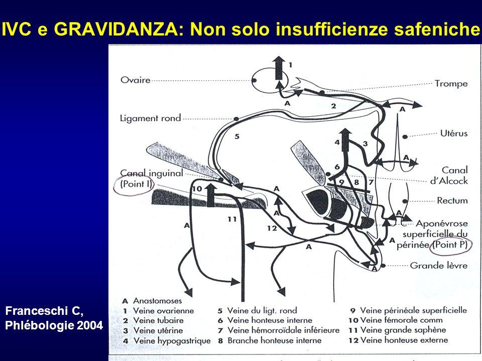 IVC e GRAVIDANZA: Non solo insufficienze safeniche Franceschi C, Phlébologie 2004