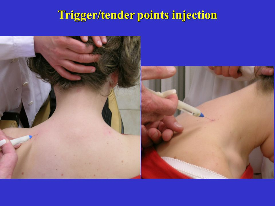 Trigger/tender points injection