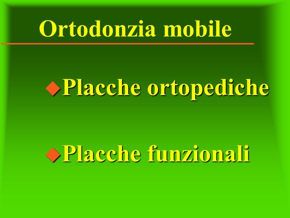 Ortodonzia mobile u Placche ortopediche u Placche funzionali
