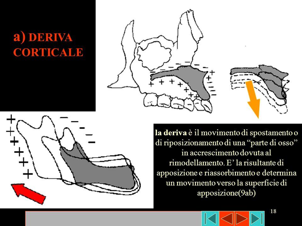 18 la deriva è il movimento di spostamento o di riposizionamento di una parte di osso in accrescimento dovuta al rimodellamento. E la risultante di ap