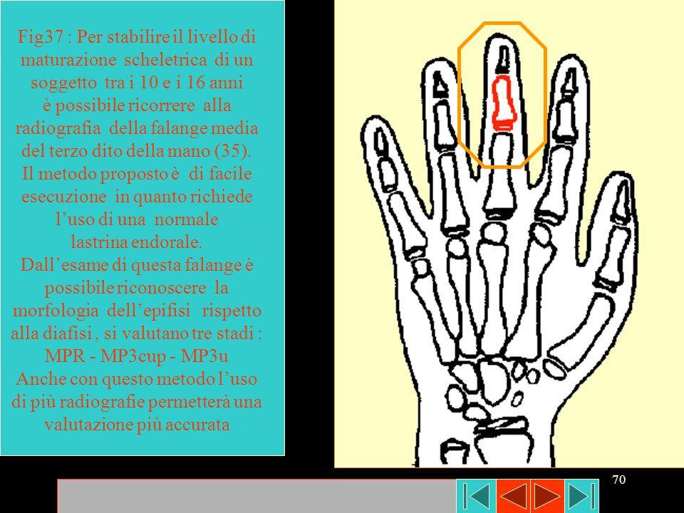 70 Fig37 : Per stabilire il livello di maturazione scheletrica di un soggetto tra i 10 e i 16 anni è possibile ricorrere alla radiografia della falang