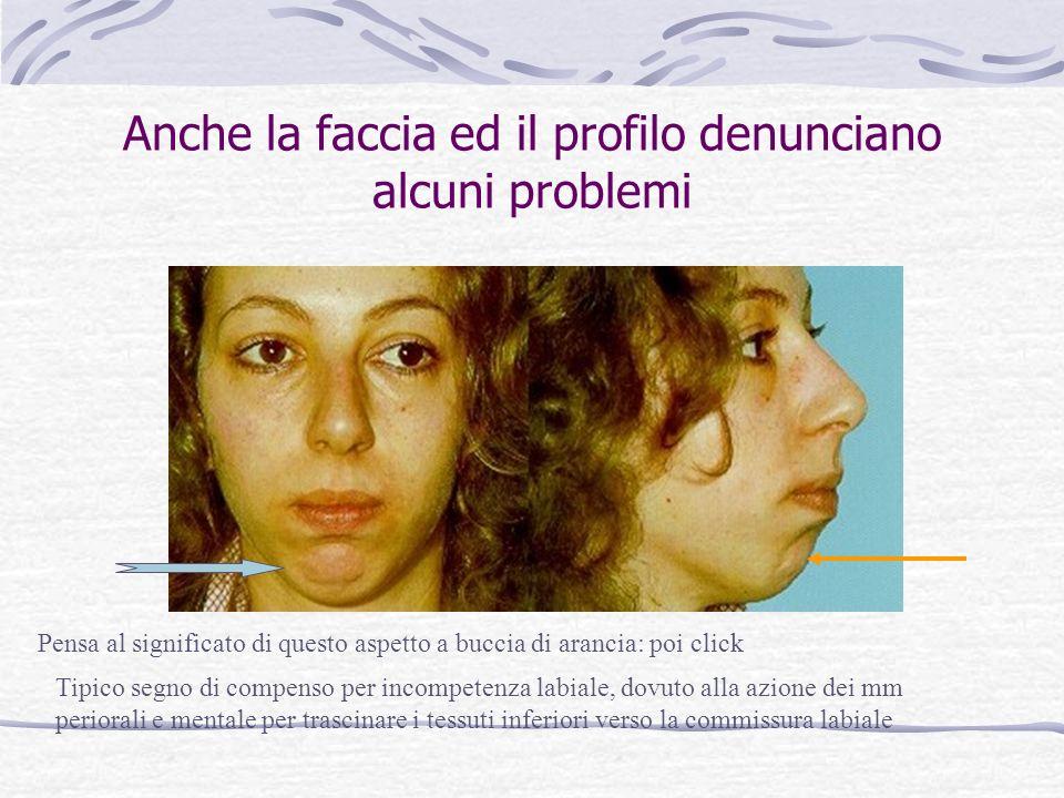 Anche la faccia ed il profilo denunciano alcuni problemi Pensa al significato di questo aspetto a buccia di arancia: poi click Tipico segno di compenso per incompetenza labiale, dovuto alla azione dei mm periorali e mentale per trascinare i tessuti inferiori verso la commissura labiale