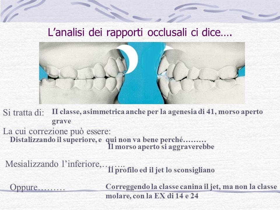 Larcata inferiore viene sistemata attraverso lo stripping e quindi la posizione dei molari e premolari rimane immutata Quale è il livello massimo di s