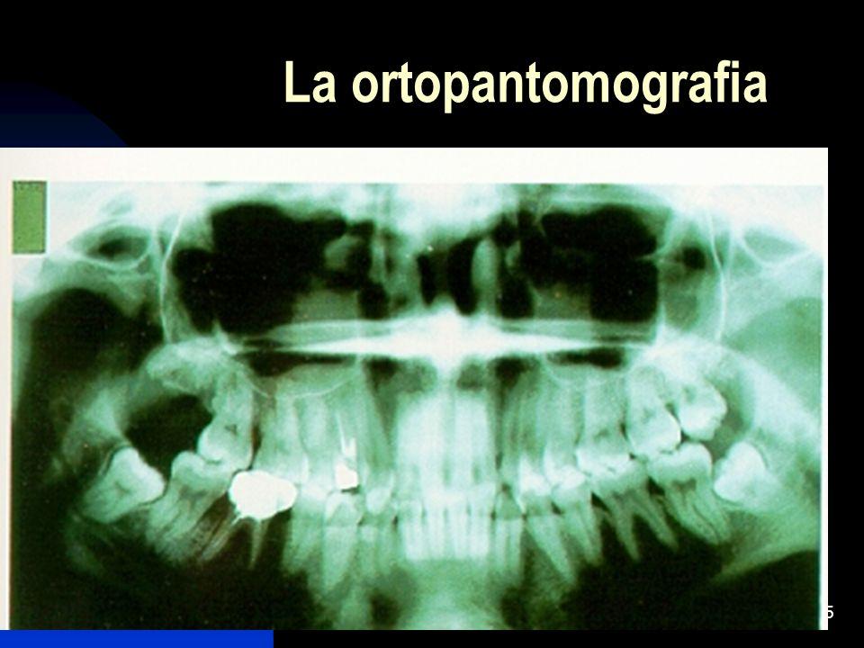 5 La ortopantomografia