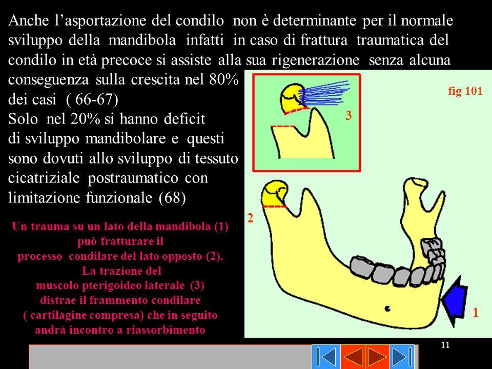 11 fig 101 1 2 3 Anche lasportazione del condilo non è determinante per il normale sviluppo della mandibola infatti in caso di frattura traumatica del