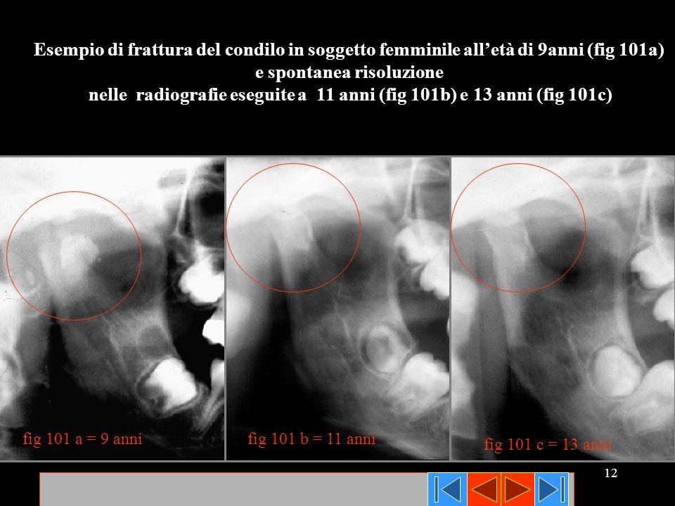 12 fig 101 c = 13 anni fig 101 b = 11 annifig 101 a = 9 anni Esempio di frattura del condilo in soggetto femminile alletà di 9anni (fig 101a) e sponta
