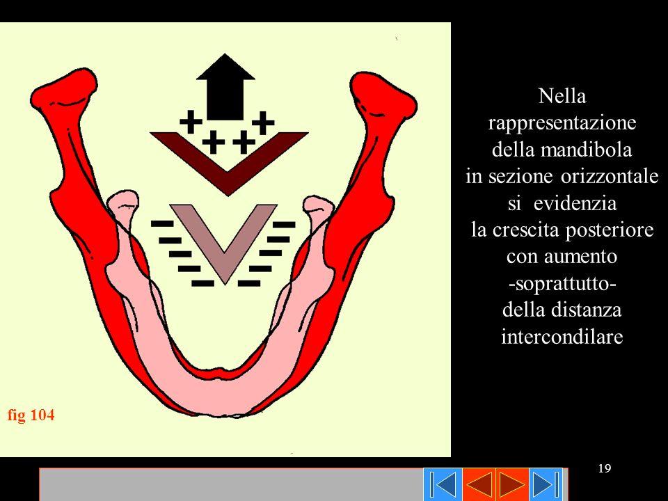 19 Nella rappresentazione della mandibola in sezione orizzontale si evidenzia la crescita posteriore con aumento -soprattutto- della distanza intercon