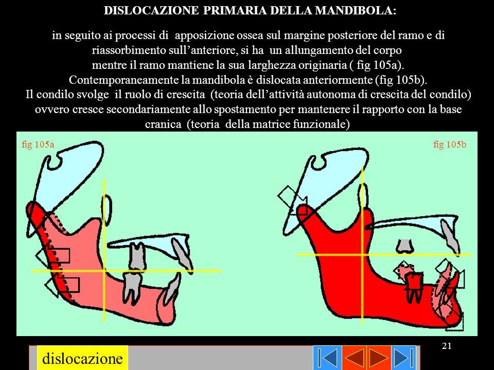 21 in seguito ai processi di apposizione ossea sul margine posteriore del ramo e di riassorbimento sullanteriore, si ha un allungamento del corpo ment