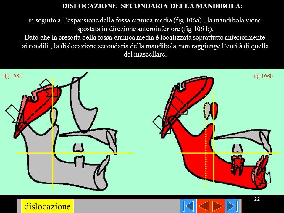 22 in seguito allespansione della fossa cranica media (fig 106a), la mandibola viene spostata in direzione anteroinferiore (fig 106 b). Dato che la cr