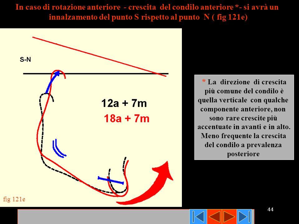 44 fig 121e In caso di rotazione anteriore - crescita del condilo anteriore *- si avrà un innalzamento del punto S rispetto al punto N ( fig 121e) * L