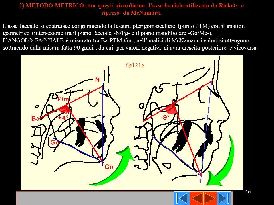46 Lasse facciale si costruisce congiungendo la fessura pterigomascellare (punto PTM) con il gnation geometrico (intersezione tra il piano facciale -N