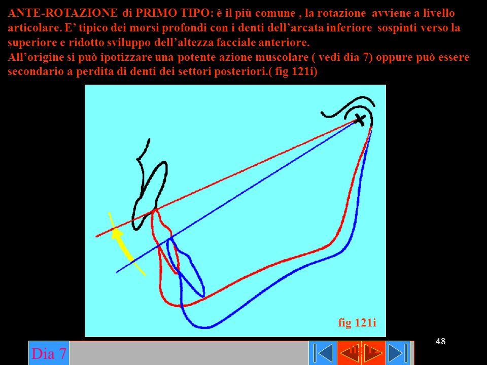 48 ANTE-ROTAZIONE di PRIMO TIPO: è il più comune, la rotazione avviene a livello articolare. E tipico dei morsi profondi con i denti dellarcata inferi