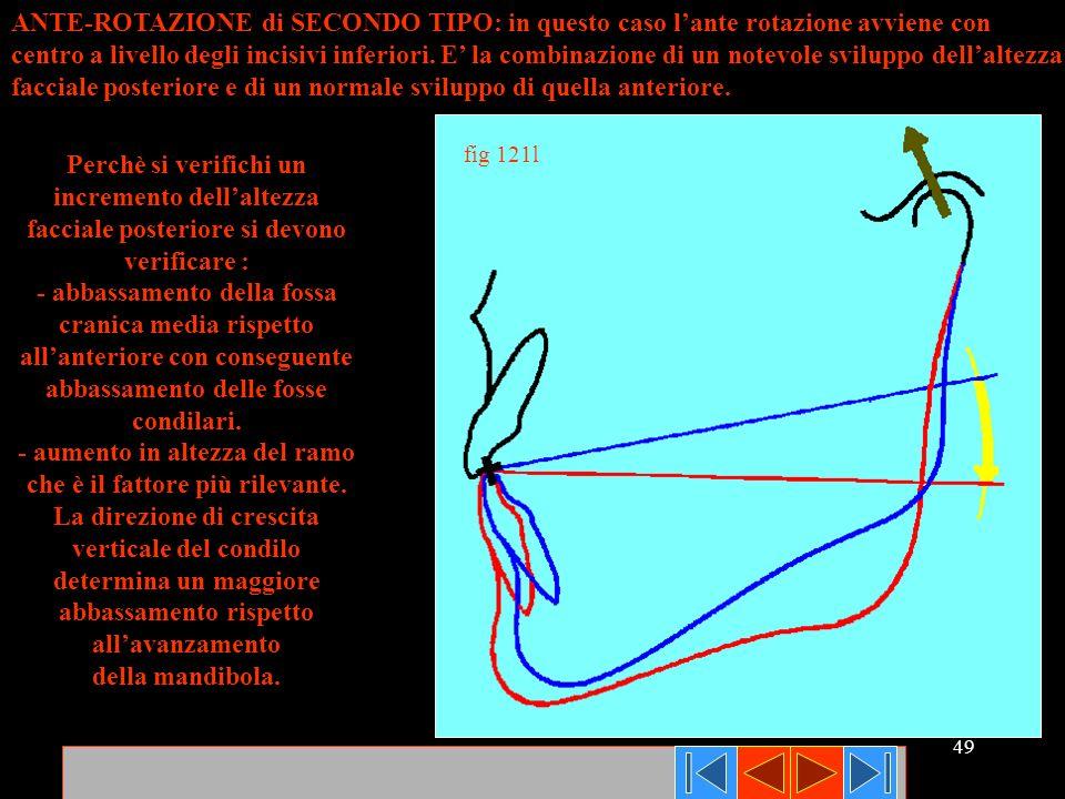 49 ANTE-ROTAZIONE di SECONDO TIPO: in questo caso lante rotazione avviene con centro a livello degli incisivi inferiori. E la combinazione di un notev