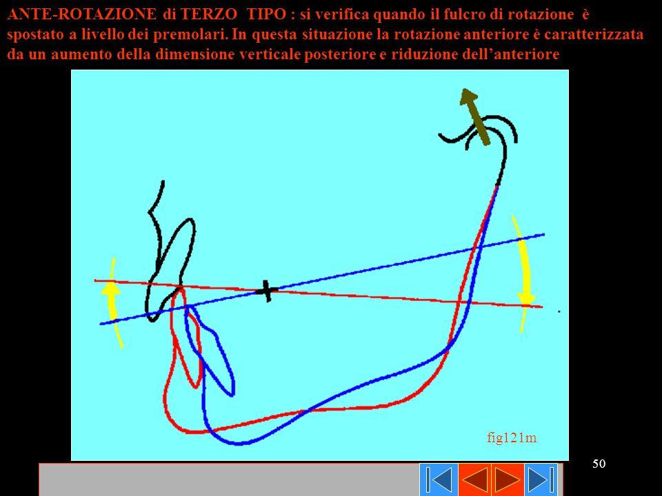 50 ANTE-ROTAZIONE di TERZO TIPO : si verifica quando il fulcro di rotazione è spostato a livello dei premolari. In questa situazione la rotazione ante