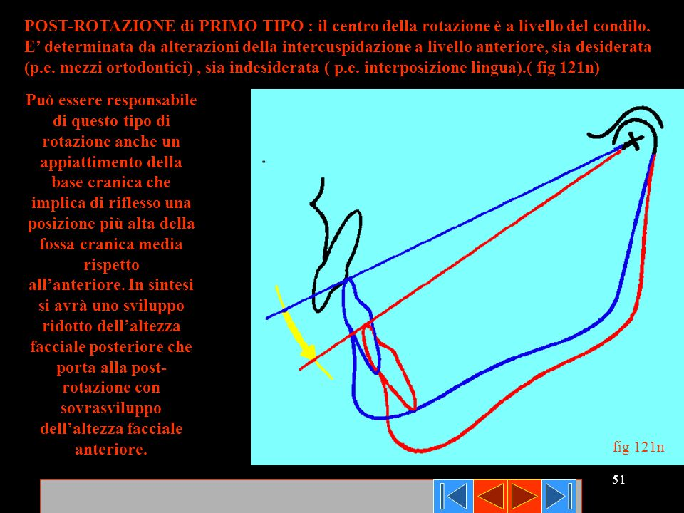 51 POST-ROTAZIONE di PRIMO TIPO : il centro della rotazione è a livello del condilo. E determinata da alterazioni della intercuspidazione a livello an